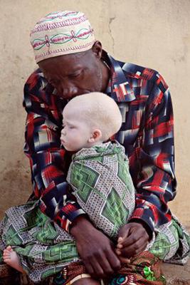 Albinos-Tanzania